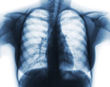 Film chest x-ray of normal woman chest