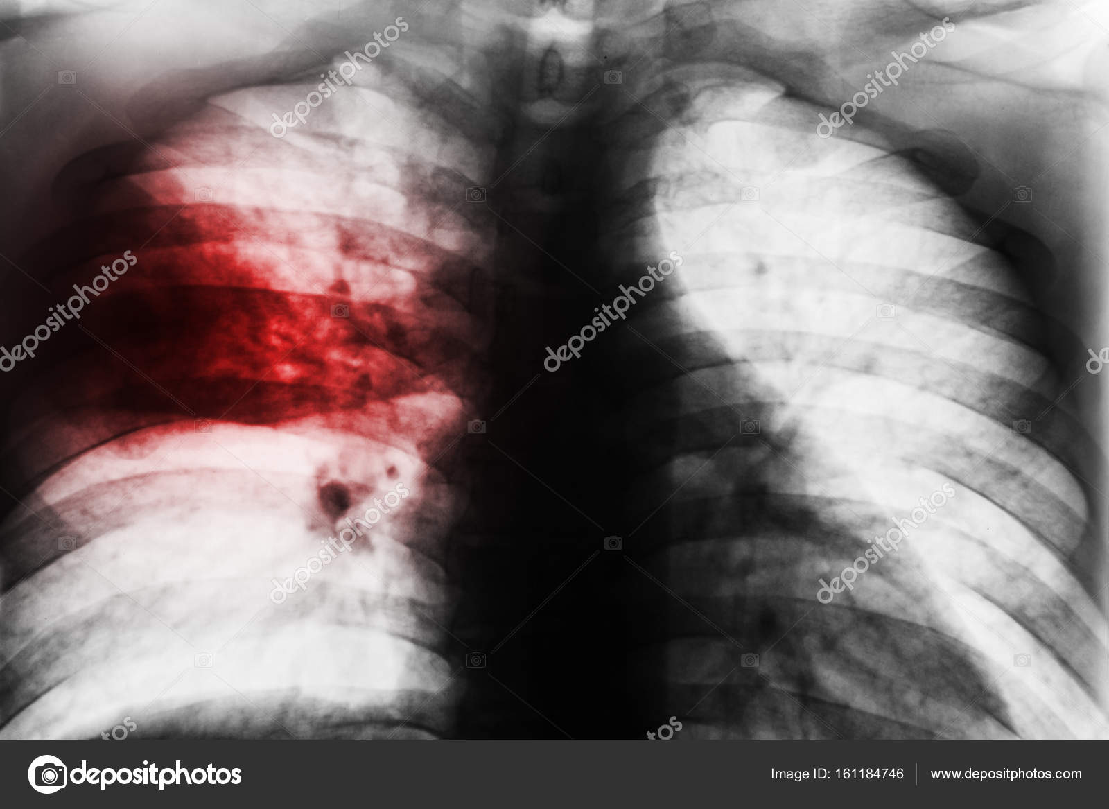 Lobar Pneumonia   Film chest x-ray show patchy infiltrate at