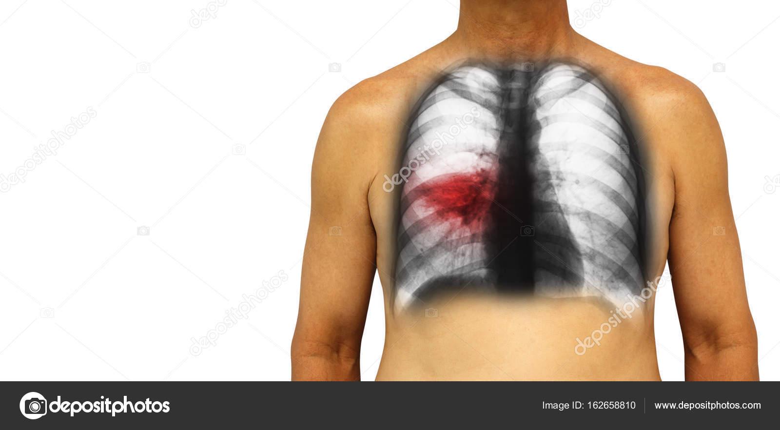 Tuberculosis pulmonar. Humano tórax con Infiltrado irregular de ...