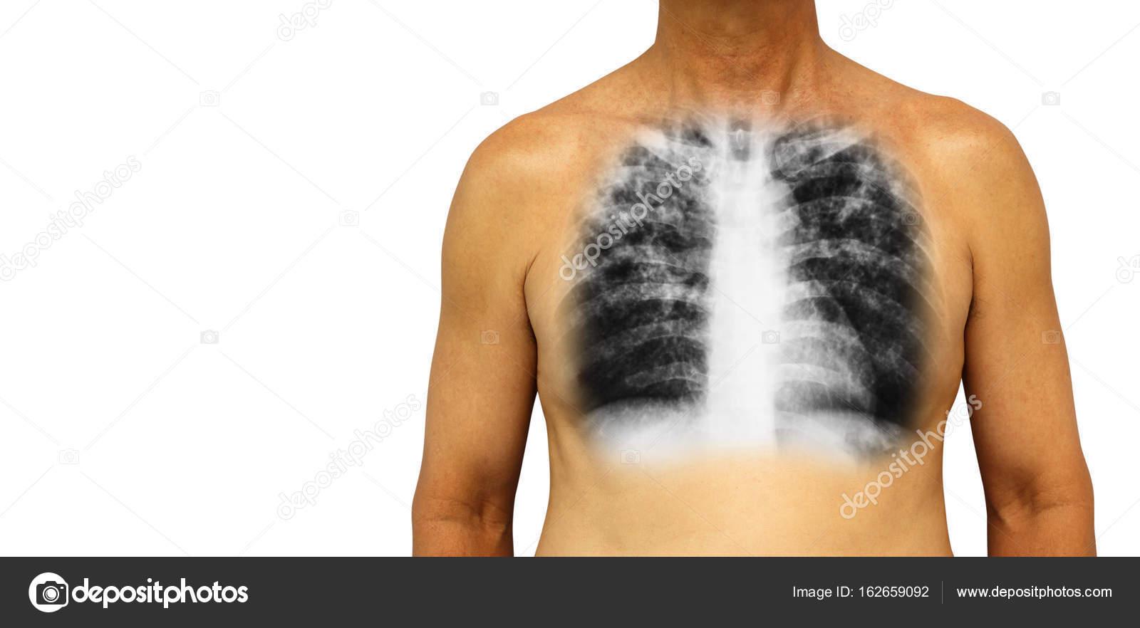 Lungentuberkulose. Menschliche Brust mit x-ray interstitielle ...
