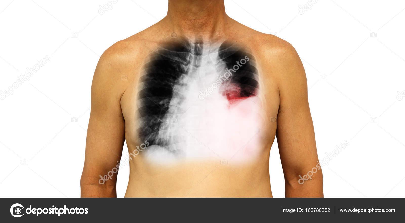 cancer i bröstkorgen