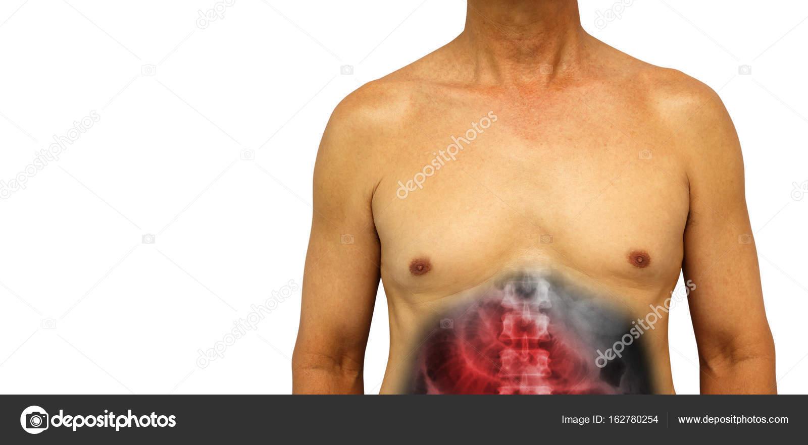 Cáncer de colon y la obstrucción de intestino delgado. Abdomen ...