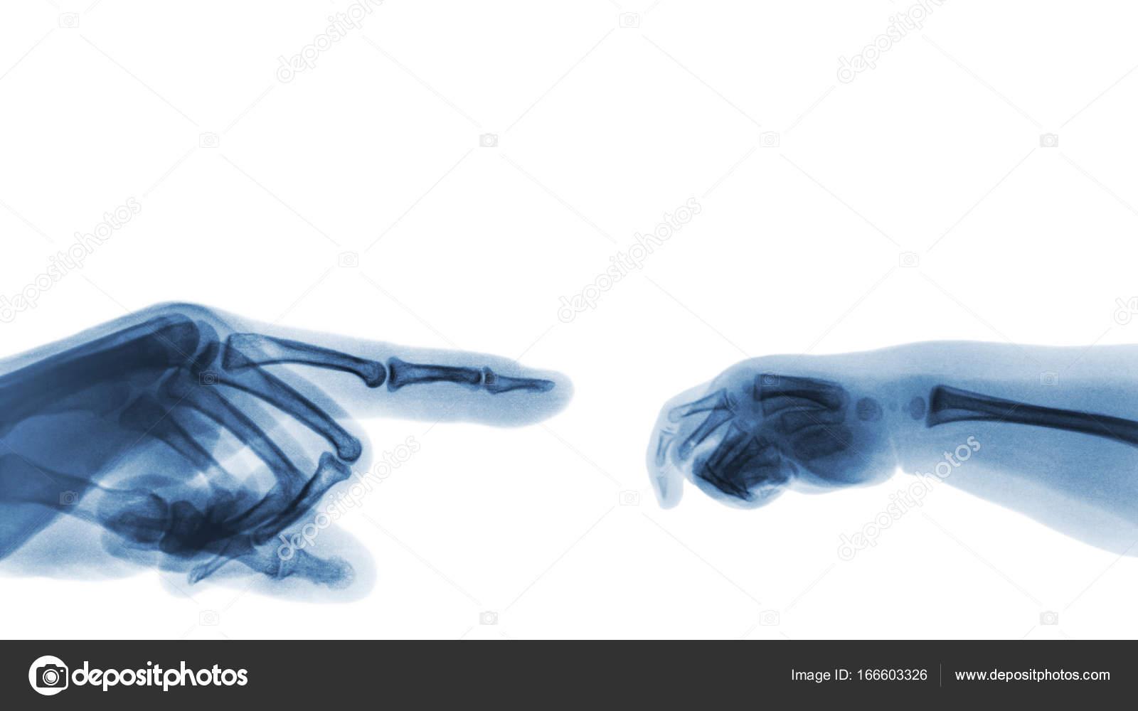 72dcf4123cb4 Ακτινογραφία του ενήλικα σημείο χέρι δάχτυλο στην αριστερή πλευρά και το  χέρι του μωρού στην δεξιά πλευρά. Κενή περιοχή στο επάνω πλευρά– εικόνα  αρχείου
