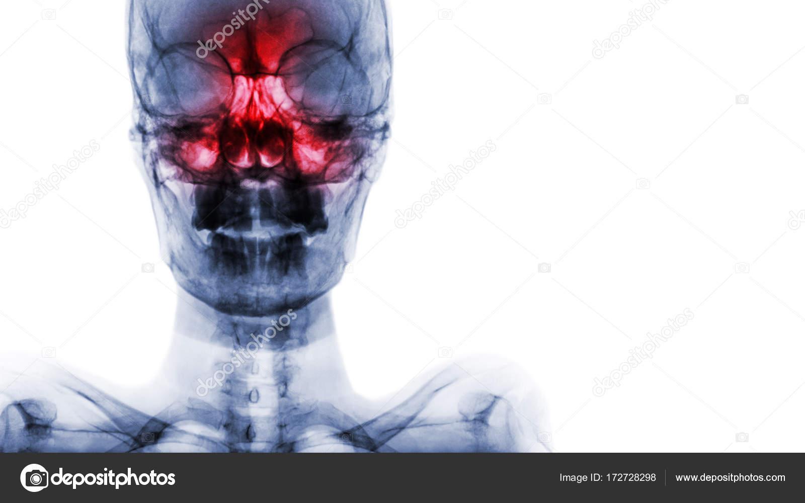 Sinusitis im Sinus maxillaris, frontal, Siebbein. Roentgenfilm des ...