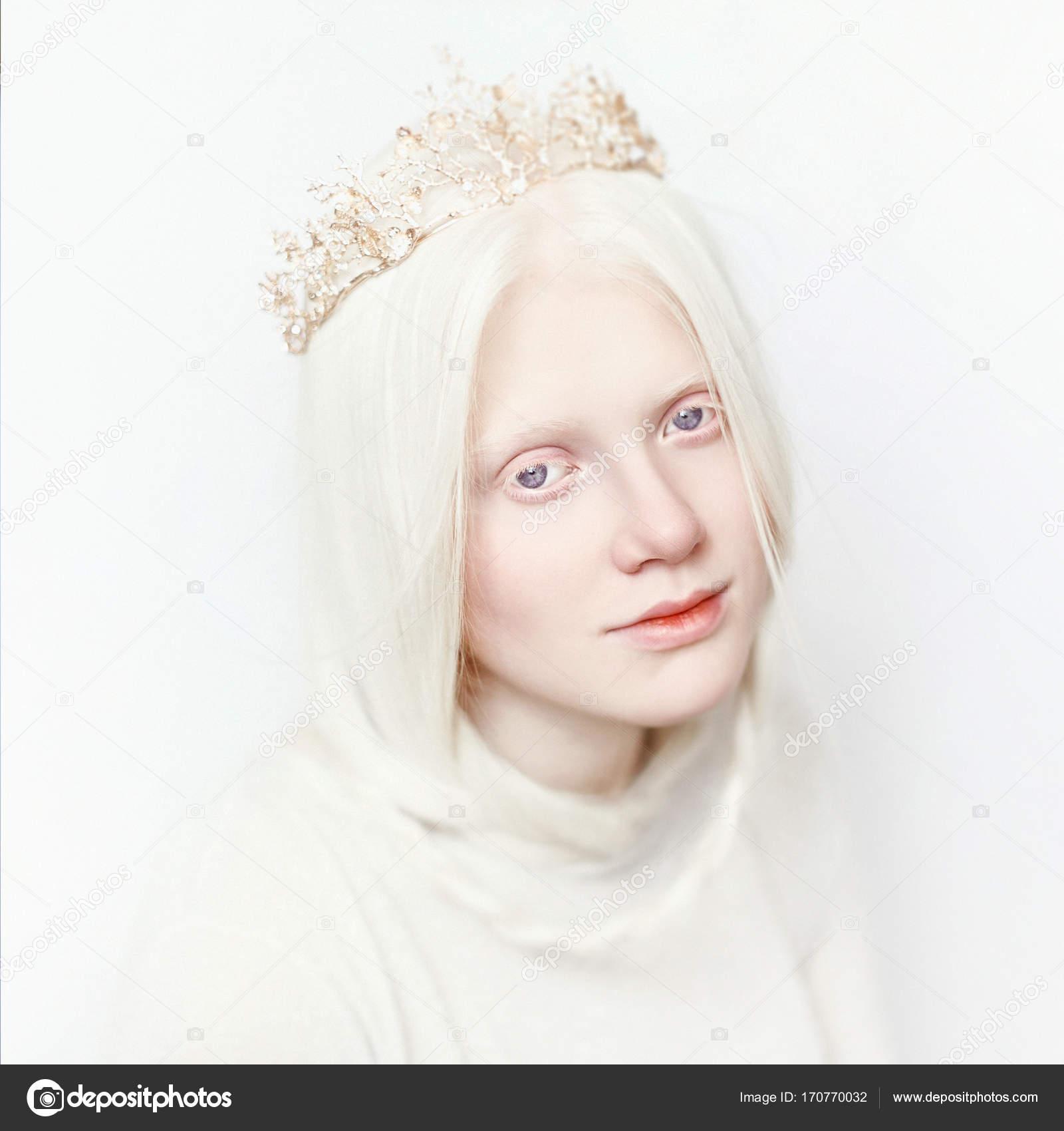 ragazza di regina di albino con pelle bianca naturale
