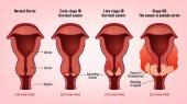 Rakovina děložního čípku obrázek