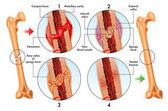 Medicínské ilustrace stádií zlomenina opravit