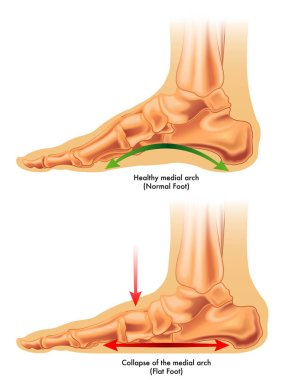 consequences of flat foot