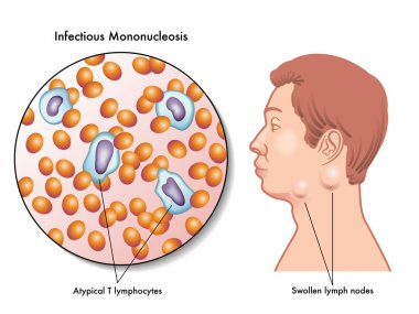 symptoms of infectious mononucleosis