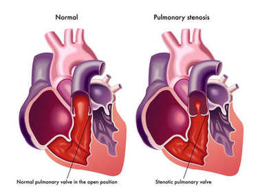 pulmonary stenosis illustration