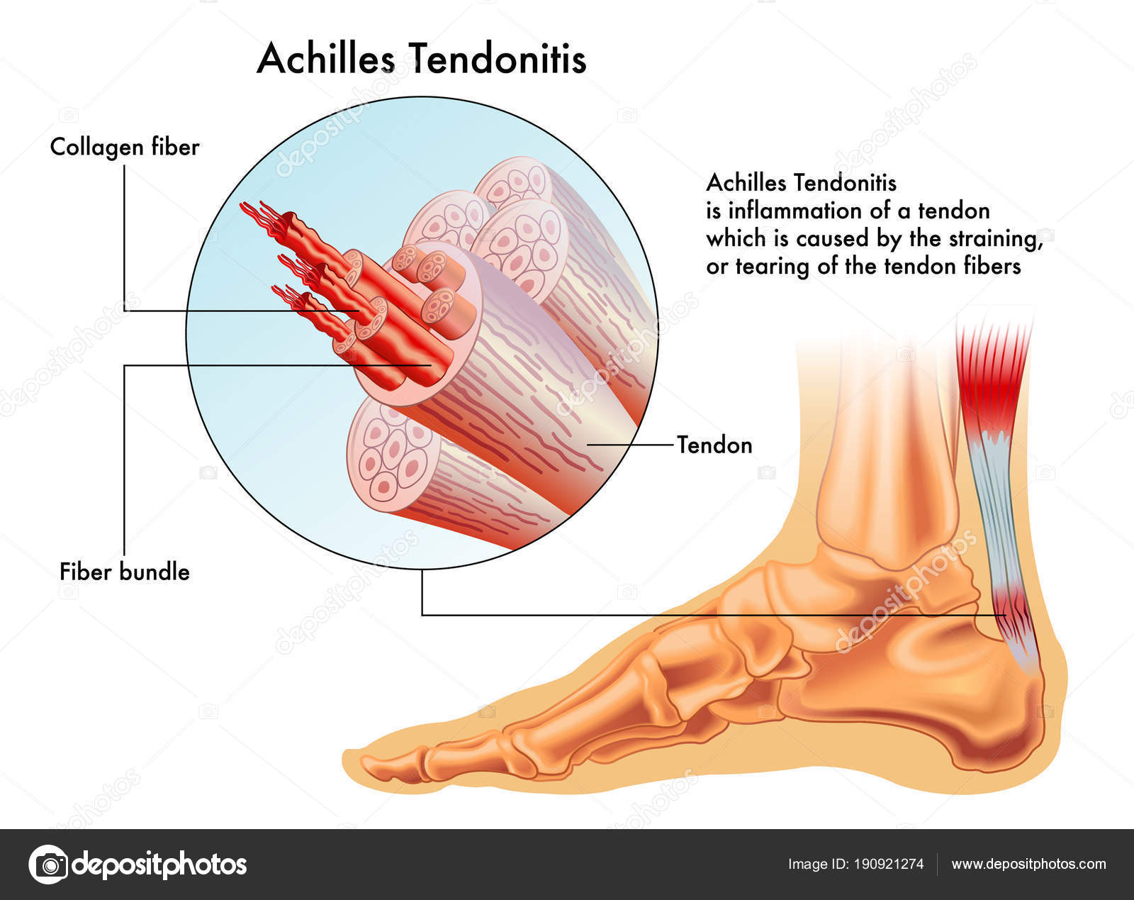 Vector Illustration Achilles Tendon Image Foot Anatomy All Tendons