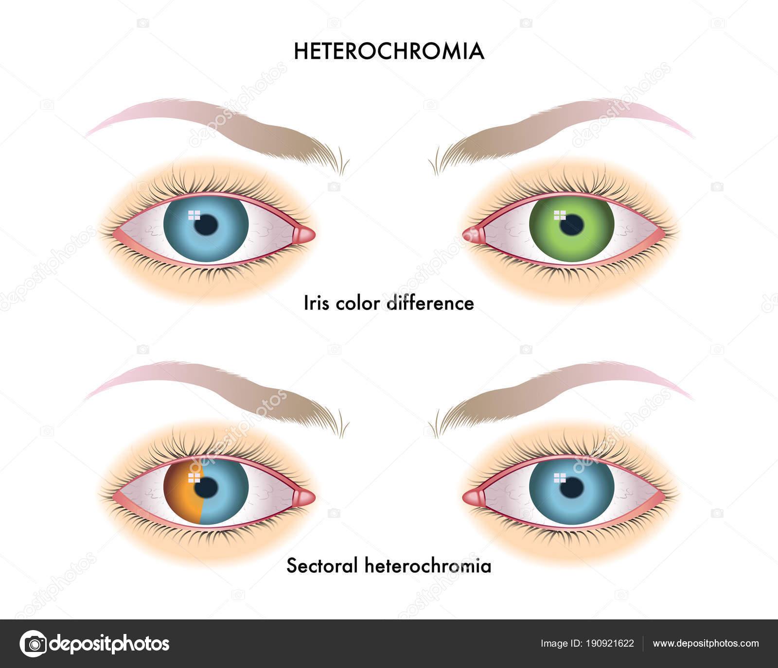 Hétérochromie oeil humain avec hétérochromie illustration vectorielle — image