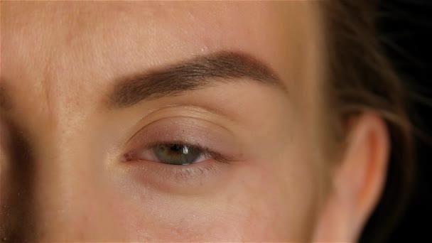 Svullna ögon