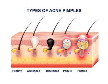 Skin Acne Anatomy Composition