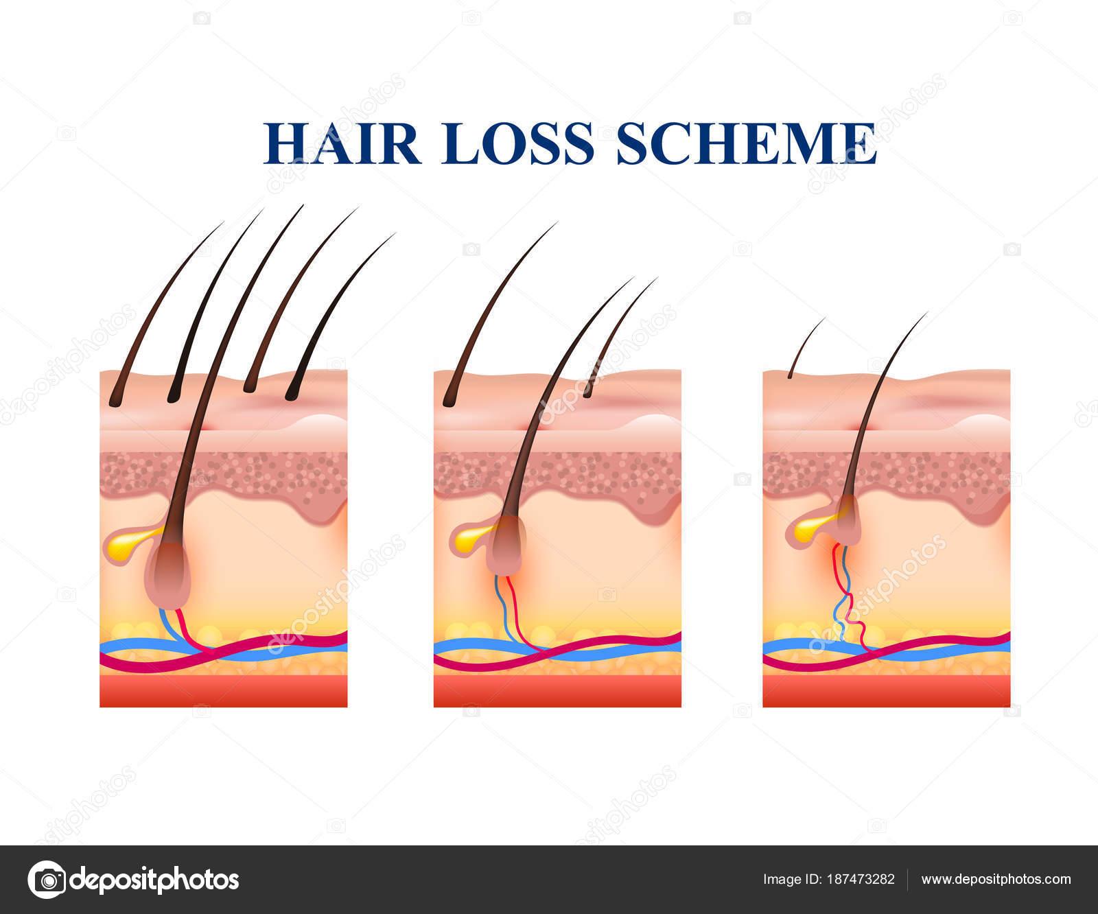 Hair Loss Scheme — Stock Vector © macrovector #187473282