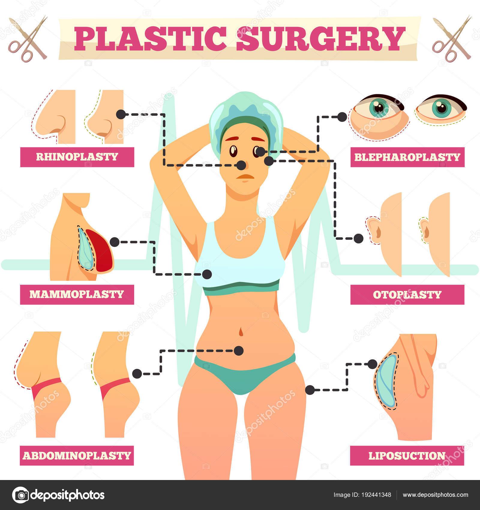 Diagrama de flujo ortogonal de cirugía plástica — Vector de stock ...