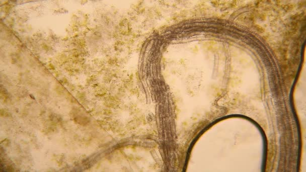 Microscopic view of organisms in the fusty water with rotten vegetation. Paramecium caudatum