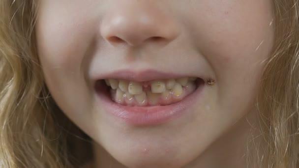 maskar i tandköttet