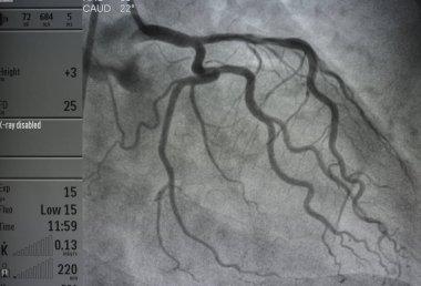 Coronary angiography , Left coronary angiography