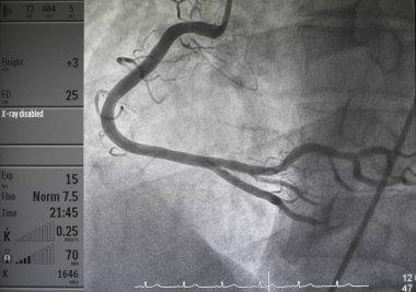 Coronary angiography , right coronary angiography