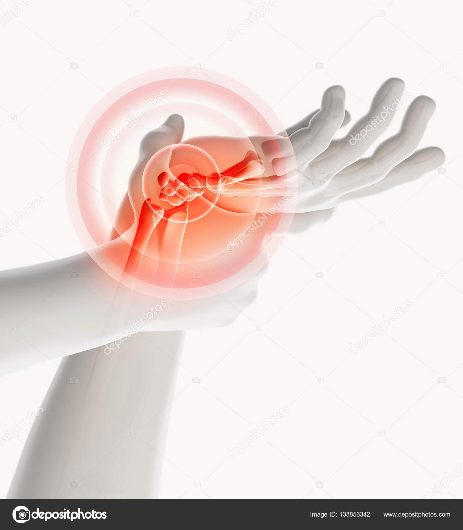 Handgelenk schmerzhaft - Skelett Röntgen — Stockfoto © yodiyim ...