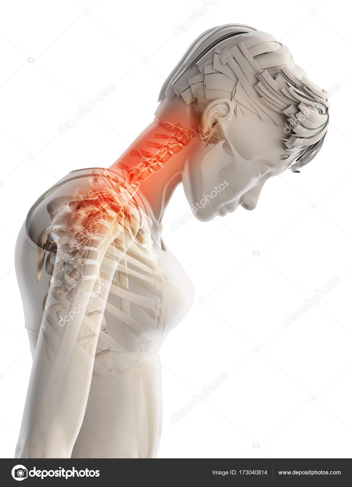 Cuello doloroso - esqueleto radiografía de la columna cervical ...
