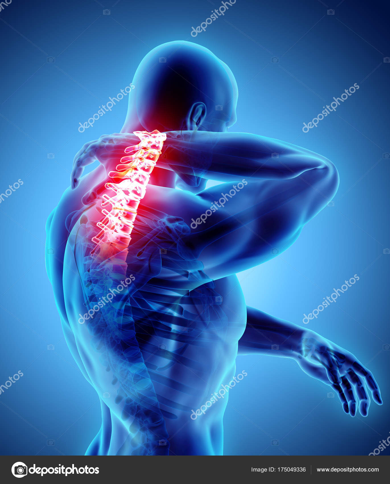Neck painful - cervical spine skeleton x-ray, 3D illustration ...