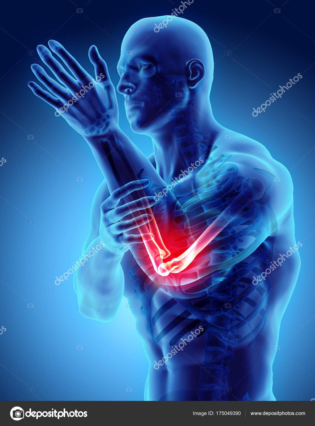 3D Abbildung des menschlichen Ellenbogen-Verletzung — Stockfoto ...