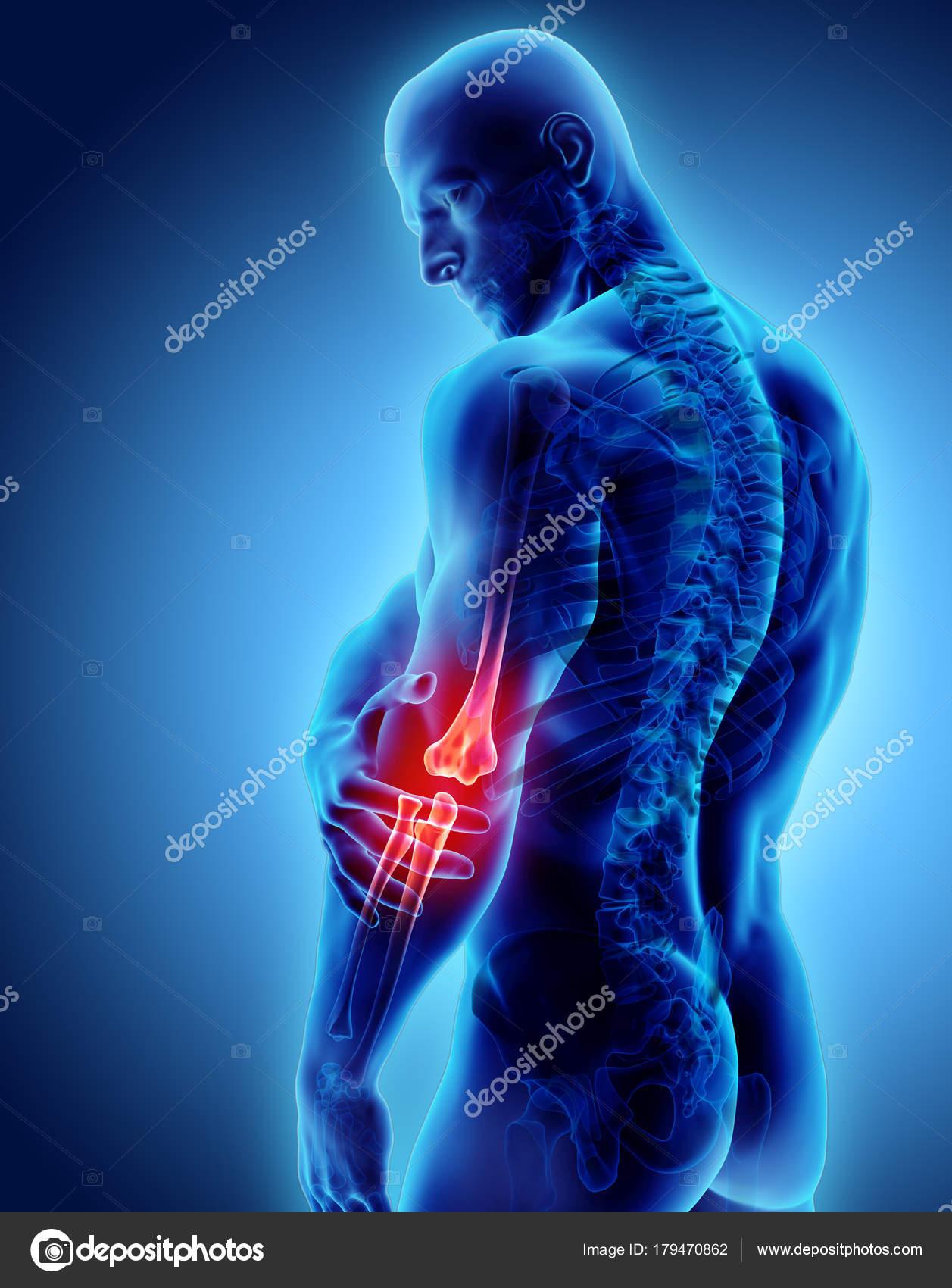 3d illustration of human elbow injury. — Stock Photo © yodiyim ...