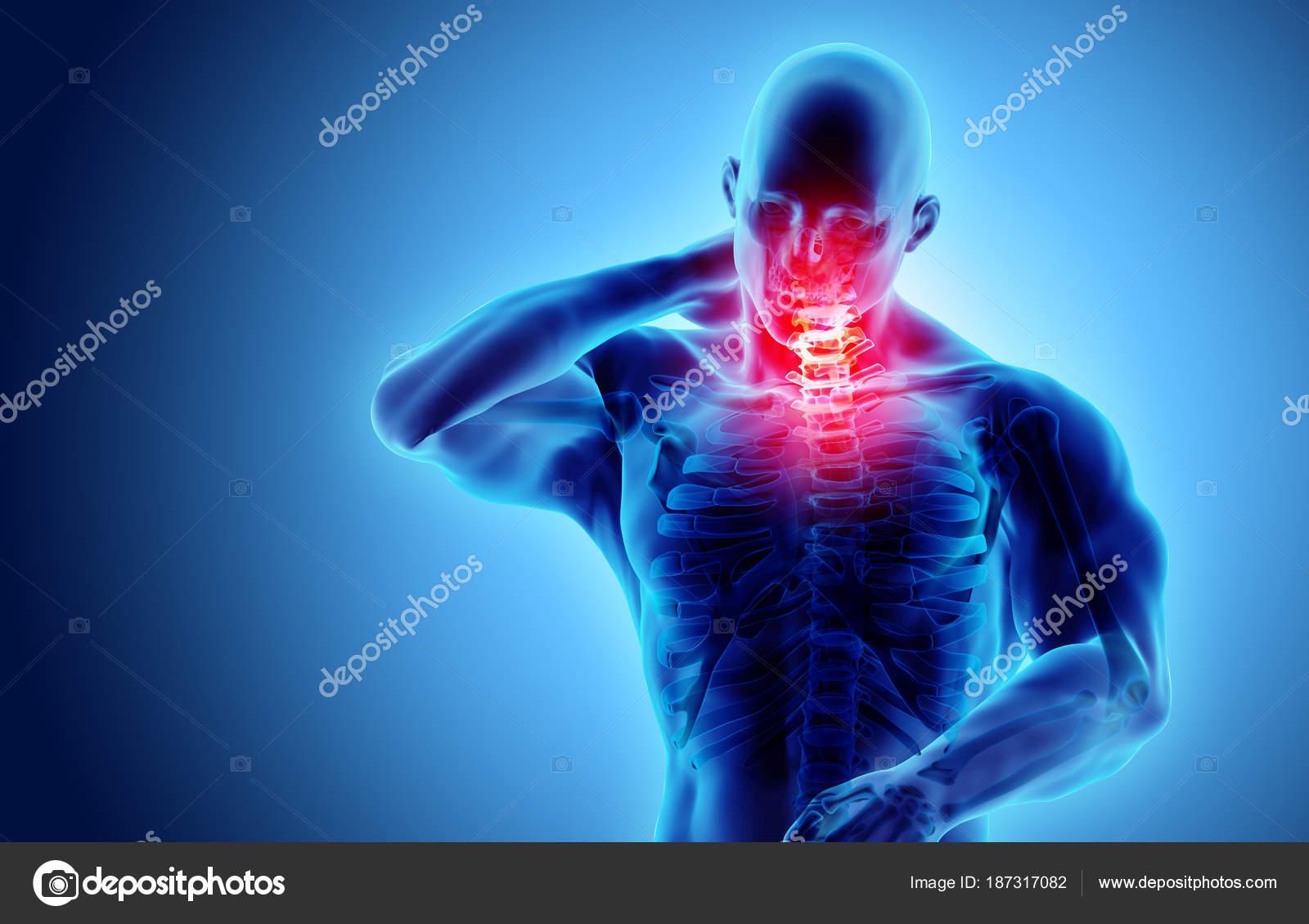 Nacken schmerzhaft - Skelett Röntgen Halswirbelsäule, 3d ...