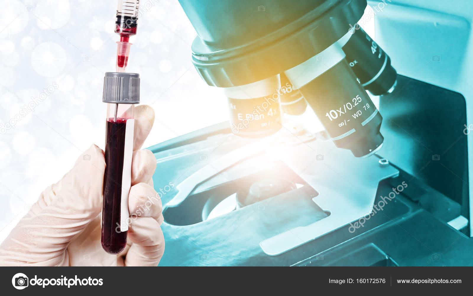 Hand die probe blut test mit labor mikroskop u stockfoto gamjai