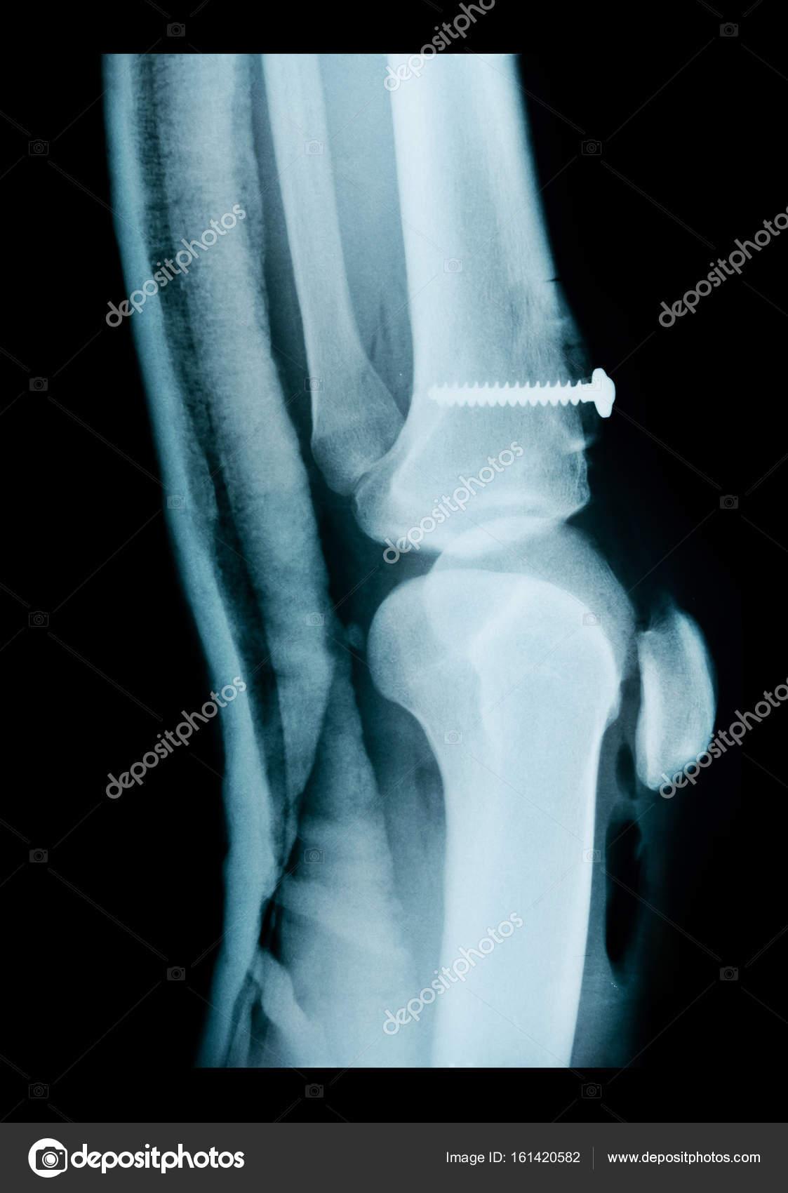 Строение суставов в рентгеновском изображении руки схема разработки коленного сустава