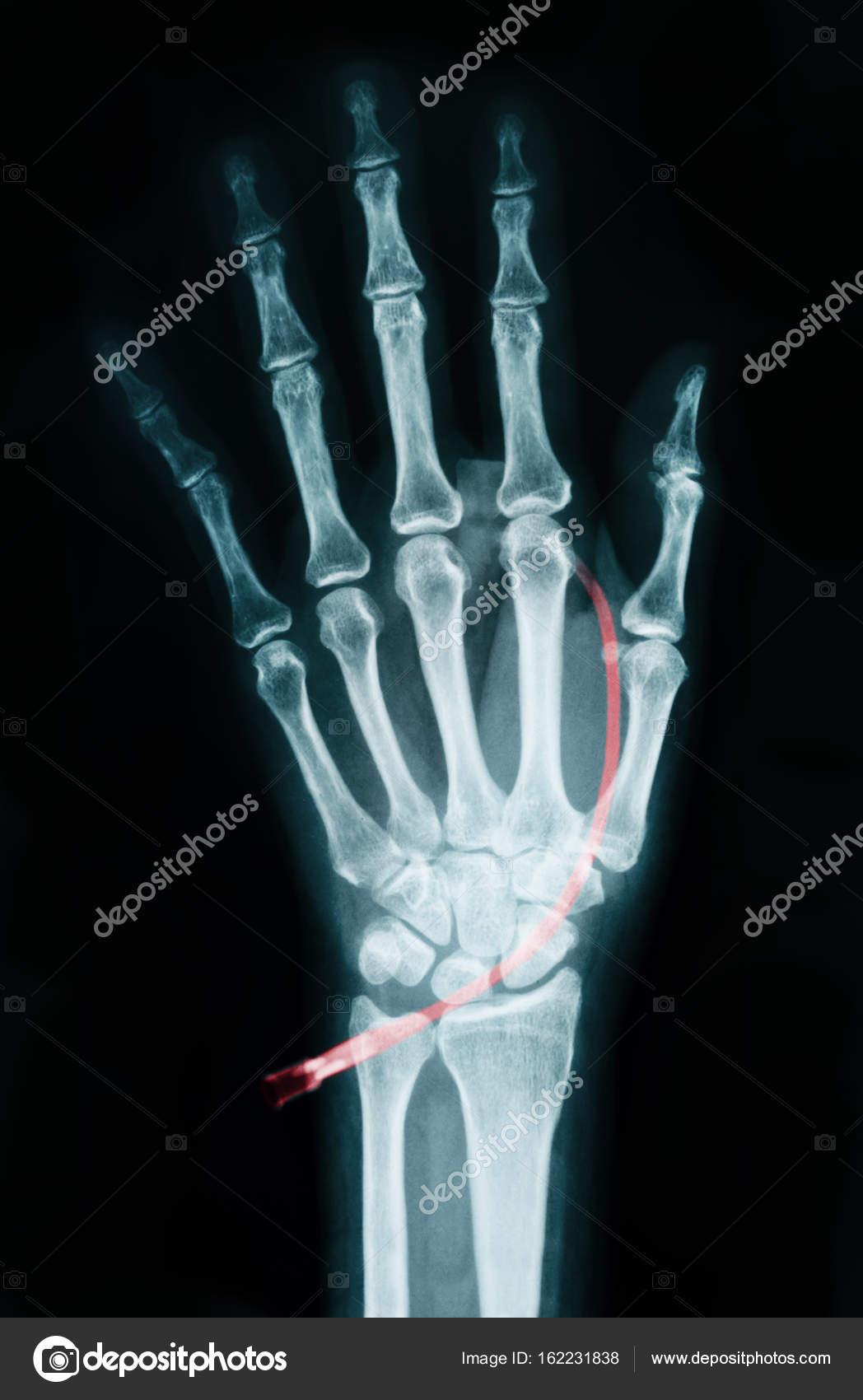 Menschliche linke Hand am Gerät X-Ray — Stockfoto © gamjai #162231838