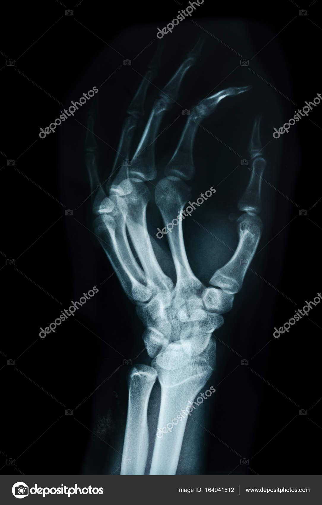 Carpal bones Human X Ray. — Stock Photo © gamjai #164941612