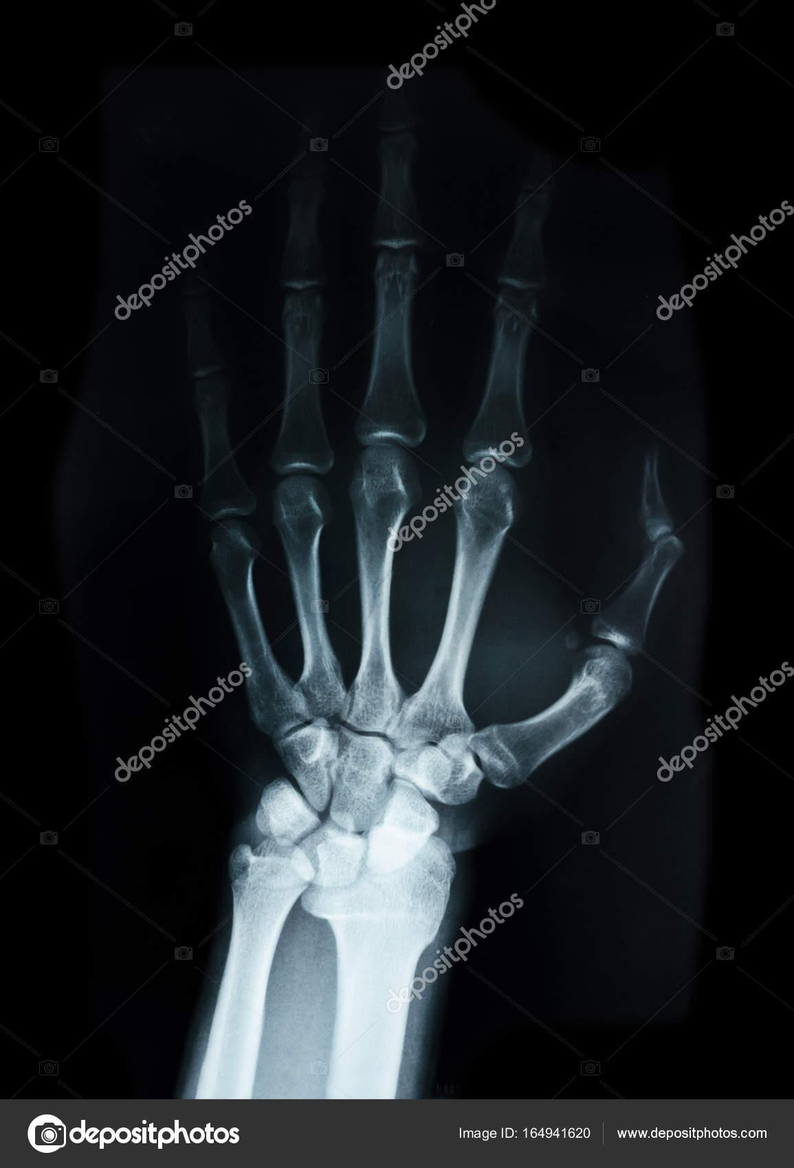 Huesos del carpo humano de rayos X — Foto de stock © gamjai #164941620