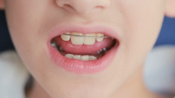 smiling child with braces on teeth
