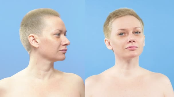 portrait of a woman . comparison before and after rhinoplasty
