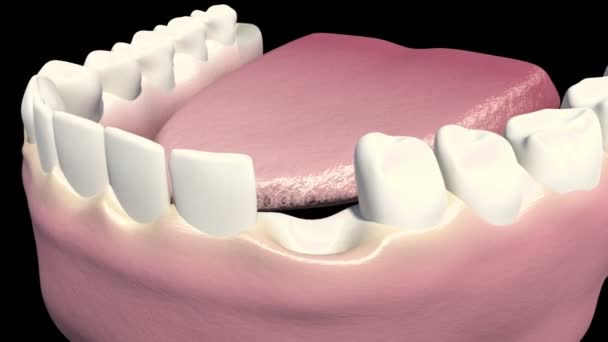 This video shows the dental implant