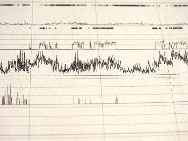 polysomnography (PSG) sleep study multi parametric test diagnostic tool