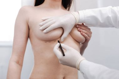 lady getting ready for breast augmentation