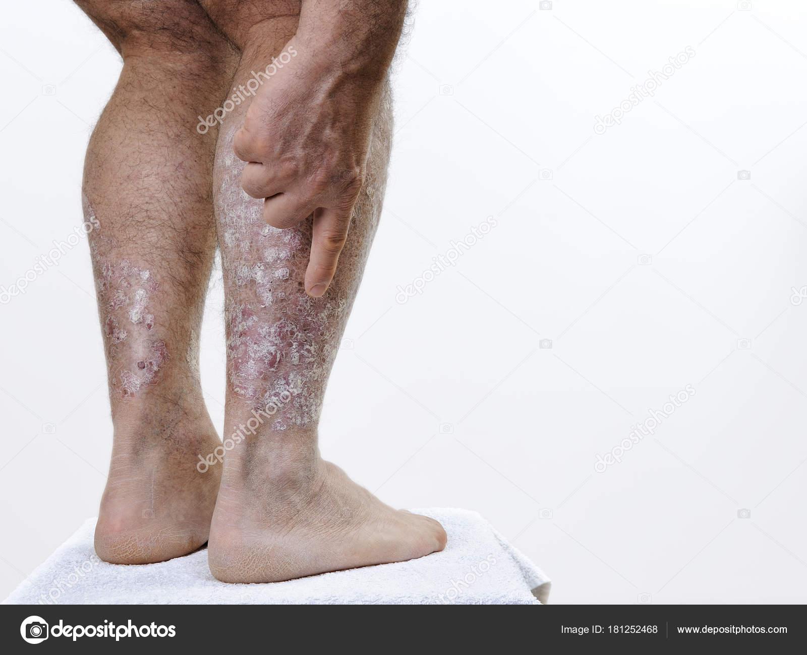 psoriasis benen