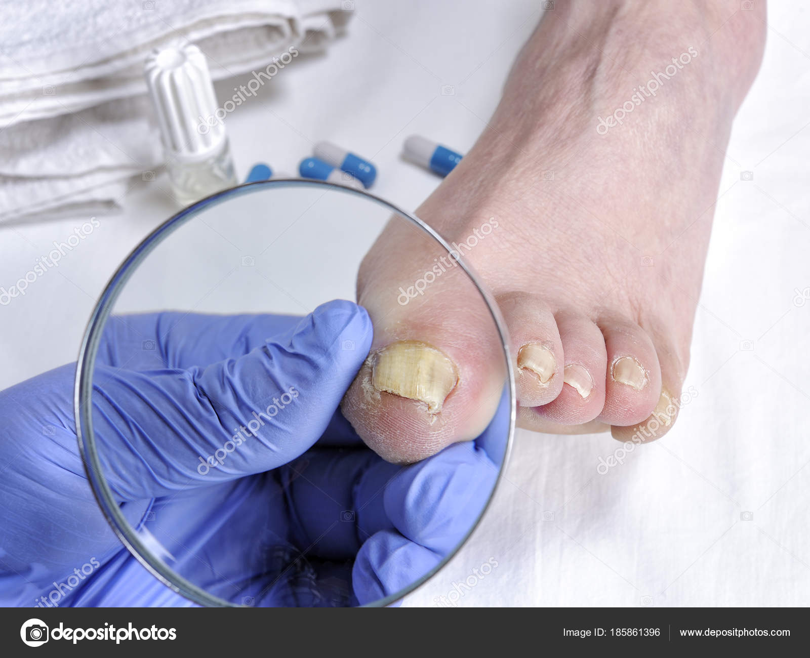 Onychomycosis Nail Disease Due To The Action Of Pathogenic Fungi