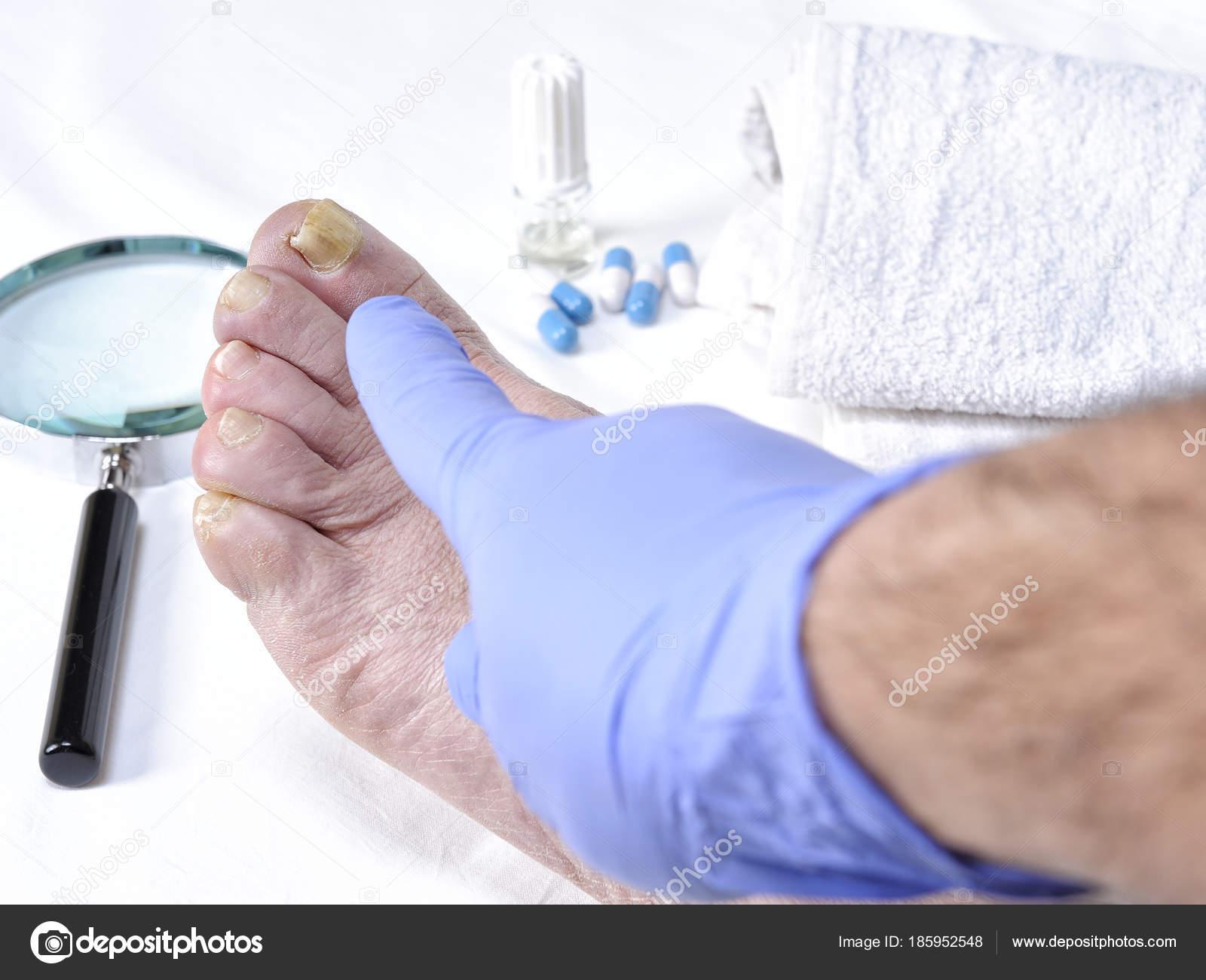 Onychomycosis, nail disease due to the action of pathogenic fungi ...