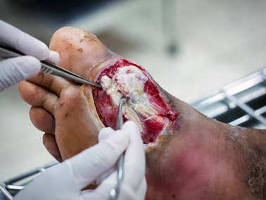 Diabetic wounds are often slow to heal require medical attention and monitoring,Diabetic foot infections