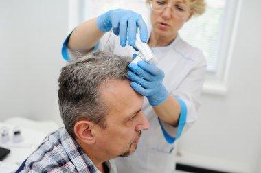 baldness. diagnostics hair and scalp