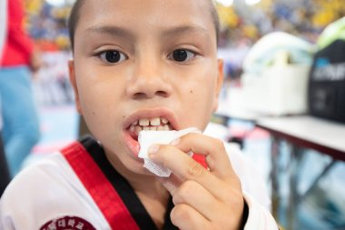 Bangkok, Thailand - July 27, 2019 ; Sport Event named Heroes TaeKwonDo International Championship 2019. Kid injuries player accident from fight at mouth and bleed at Assumption University