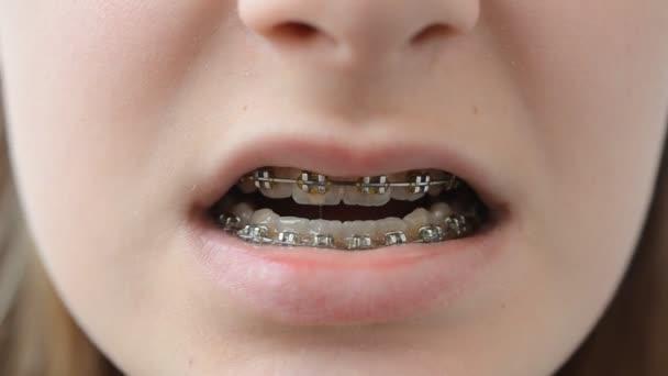 Briketts auf den Zähnen. Das Mädchen der Teenager in Briketts.