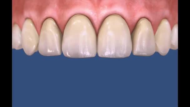 3D Dental Video - Crown and Bridge Dental Surgery 14