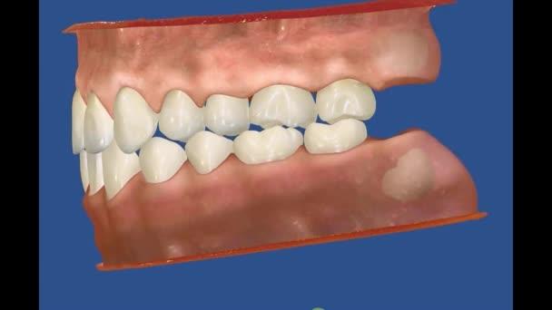 3D Dental Video - Backenzähne - Weisheitszähne 3