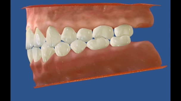 3D Dental Video - Backenzähne - Weisheitszähne 10